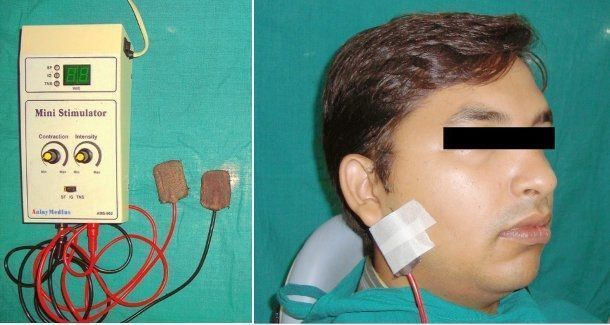 (Fotos cortesía de Aggarwal, Hersheal et al., Journal of Clinical and Experimental Dentistry).